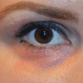 Göz Altı Morluk Tedavisi